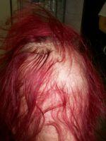 Nőknél erős hajhullás okai