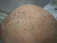 Erős hajhullás okai nőknél
