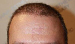 Hajátültetés eredménye